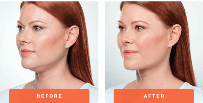Double chin treatment image